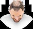 heads-male6